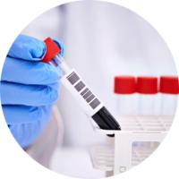 Анализ крови на коронавирус в МЦ Сканира